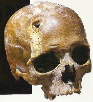 A picture of a damaged skull