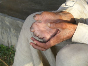 A man from Nepal shows the effects of leprosy on one of his hands.