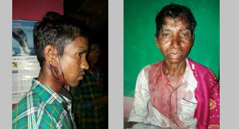 Christians at Prayer Meeting in India Attacked and Beaten by Hindu Mob Who Also Burned Bibles
